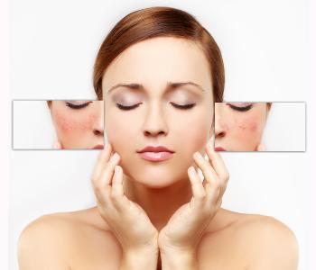 Laser skin treatment Treatment for Scar removal from Dr. Amanda Lloyd, North County San Diego