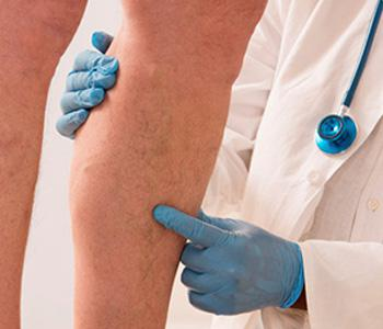 New Options for Varicose Vein Removal
