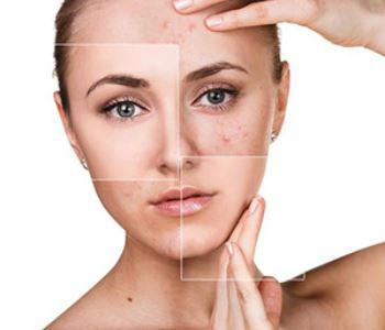 Cosmetic Dermatology is an Alternative to Surgery
