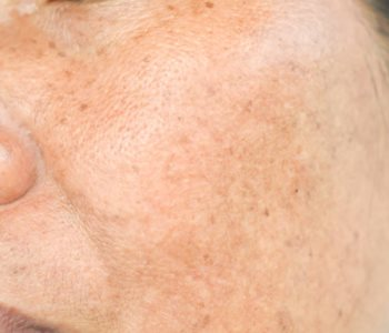 treatment for melasma from Dermatologist in CA