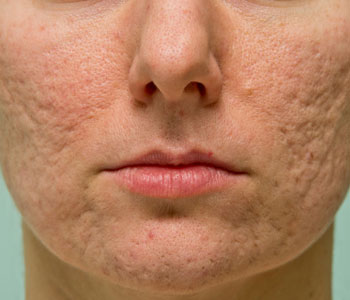 Improve your acne scars with Fraxel