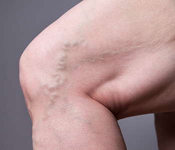 Safe and Effective Relief From Varicose Veins in Encinitas CA area