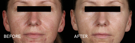 Before and After Cosmetic Treatment