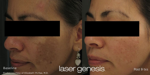 Before and After Laser Genesis Treatment Image 01