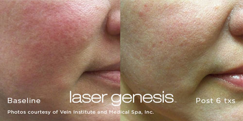 Before and After Laser Genesis Treatment Image 02