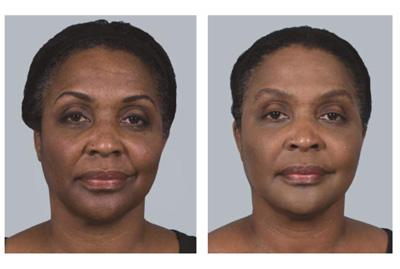 Before & After Sculptra, Case 10