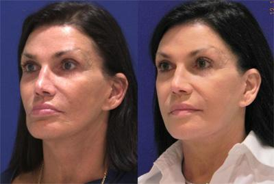 Before & After Sculptra, Case 11