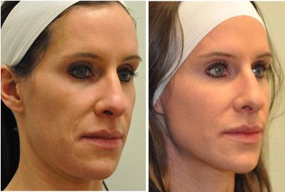 Before & After Sculptra, Case 12