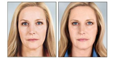 Before & After Sculptra, Case 02
