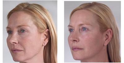 Before & After Sculptra, Case 03