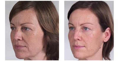 Before & After Sculptra, Case 04