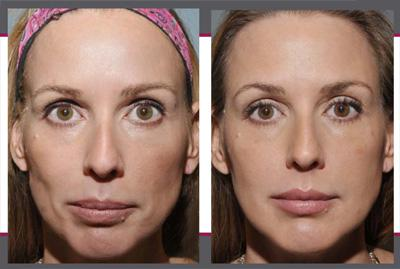Before & After Sculptra, Case 05