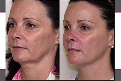 Before & After Sculptra, Case 06