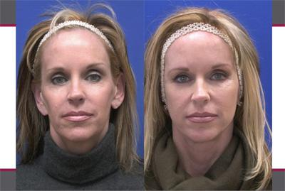 Before & After Sculptra, Case 08