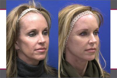 Before & After Sculptra, Case 09