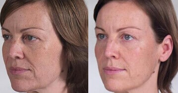 Before and After Sculptra Treatment