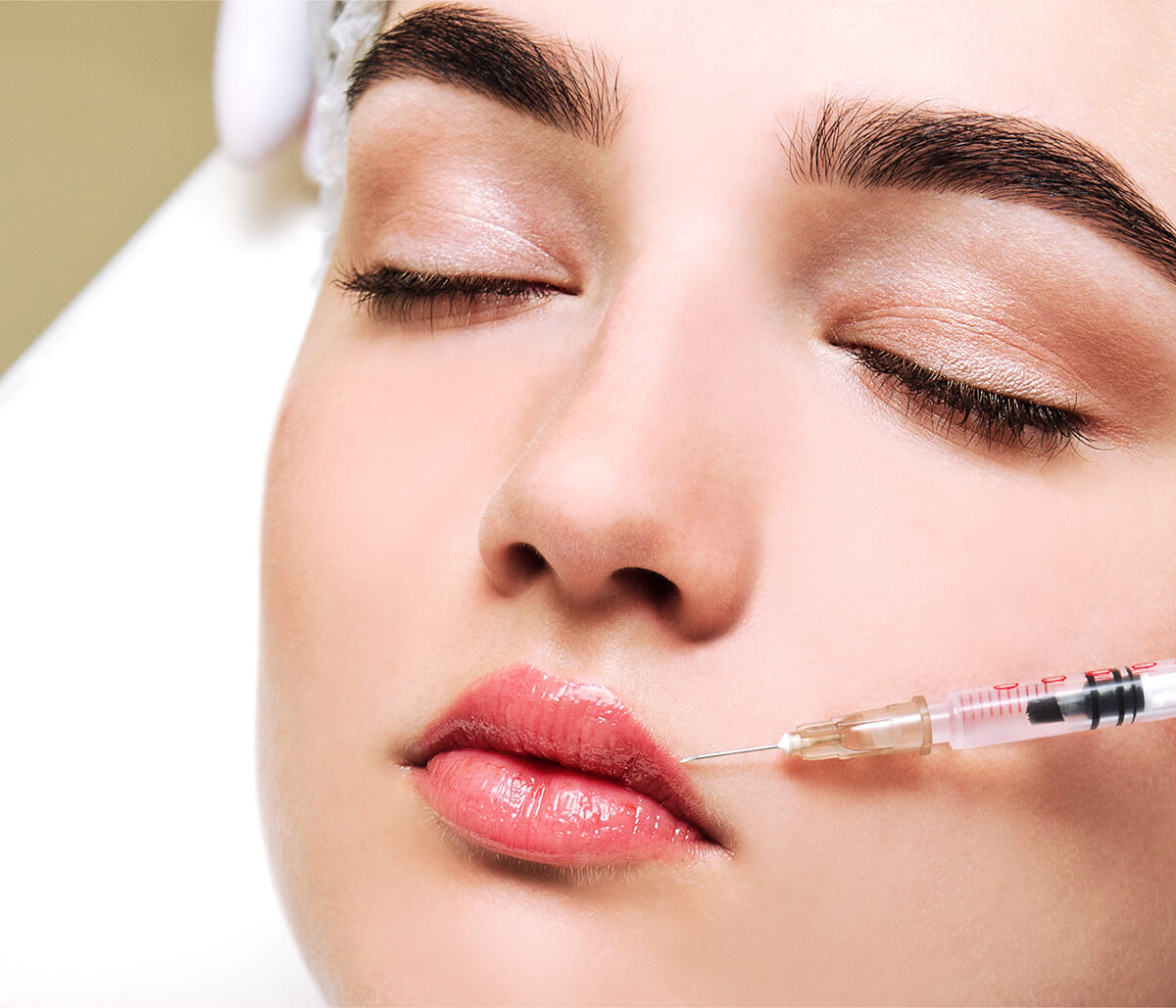Long-lasting Juvederm Ultra Xc at Skin & Vein Institute in Encinitas Area