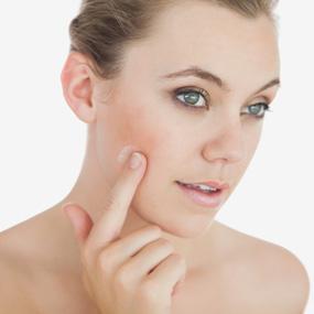 Skin Colored Bumps Encinitas CA - Sebaceous Hyperplasia