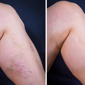 Varicose Veins Before After